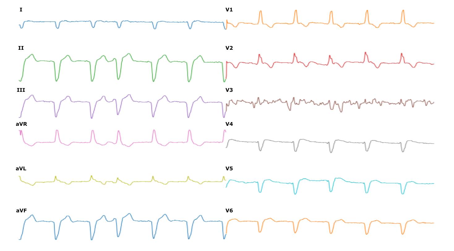Porovnanie digitalizovaného EKG s papierovým originálom.